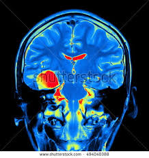 Brain Mri Anatomy Brain Mri Stock Images Royalty Free Images U0026 Vectors Shutterstock