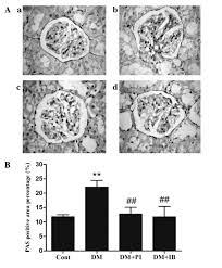 ibuprofen attenuates nephropathy in streptozotocin u2011induced