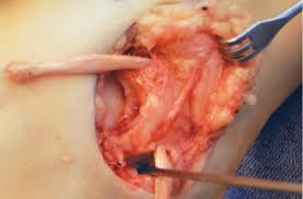 Anterior Talofibular Ligament Repair A Closer Look At Surgical Correction Of Ankle Instability