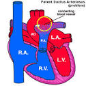 The <b>ductus arteriosus</b> is a