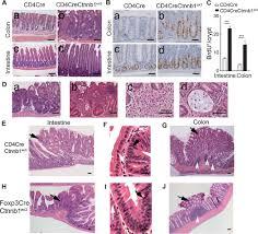 β catenin promotes colitis and colon cancer through imprinting of
