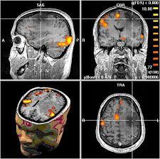 medico neurologia acorme salud