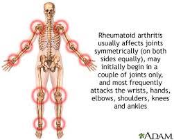 Penyakit ARTHRITIS