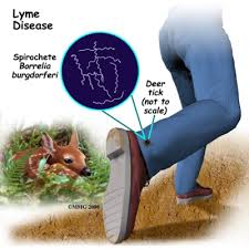 lyme disease symptoms in