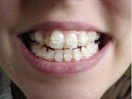 brackets Brackets   Aparato dental