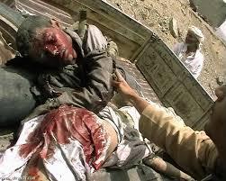 المبادرة الشعبية العربية ..اليمن جرح جديد ينزف