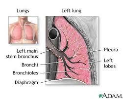 Defining Pneumonia by Location