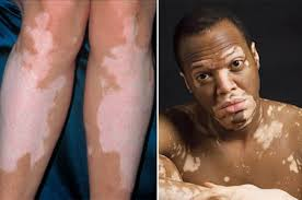 The cause of vitiligo is