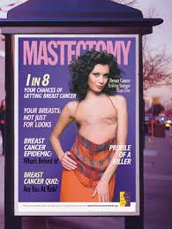 A mastectomy is surgery to