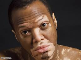The beginning of vitiligo