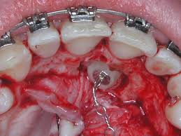 pic004 Medidas de higiene en pacientes con brackets