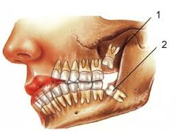 เรามาดูข้อปฏิบัติตัวหลังผ่าฟันคุดกันดีกว่านะคะ