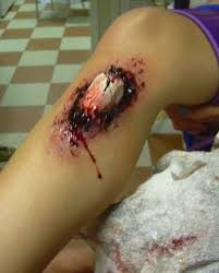 Pwn the pic above! A-little-blurry-compound-fracture_0