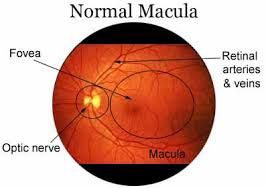 age related macular degeneration, AGE RELATED MACULAR DEGENERATION, Optometrist in Petaling Jaya | Optical Shop
