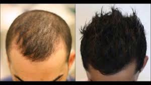 Pumpkin Seed Oil Prostate Side Effects by Pumpkin Seeds Hair Loss Dht Dht Diet Hair Loss Youtube